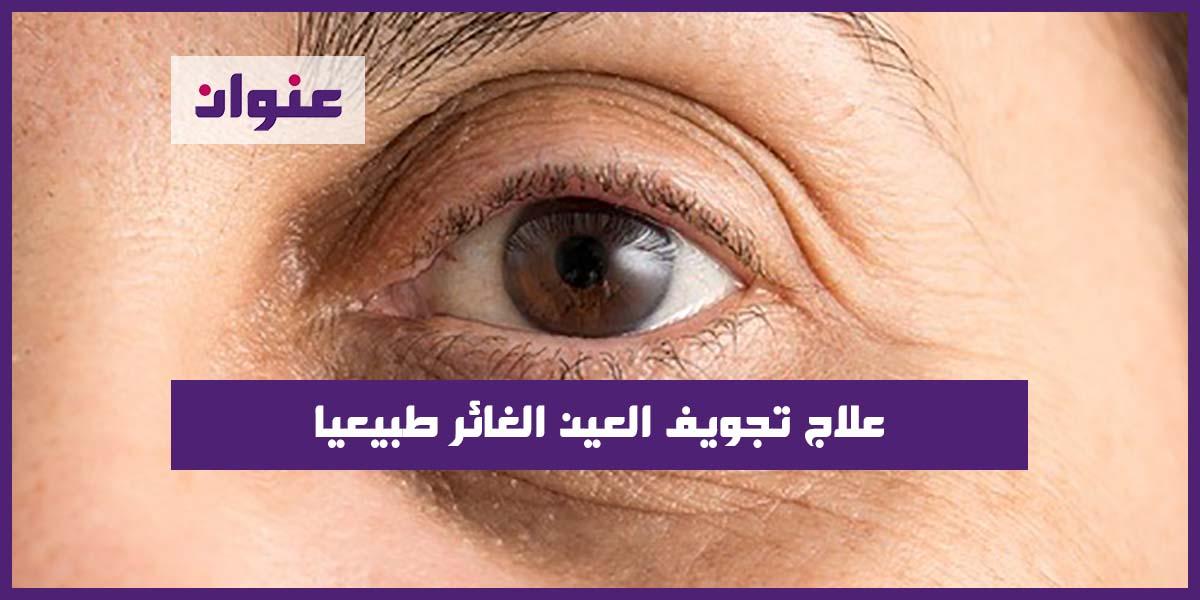 علاج تجويف العين الغائر طبيعيا